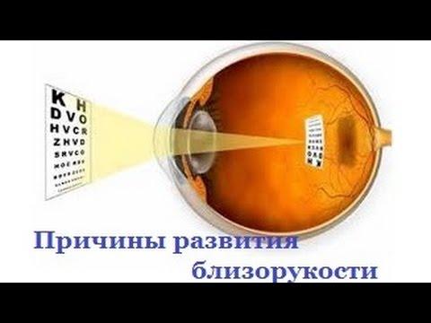 Центр по профилактике близорукости омск
