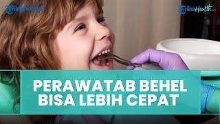 Sebaiknya Lakukan Perawatan Ortodonti Sejak Dini atau saat Gigi Bercampur, Ini Kata Dokter Gigi