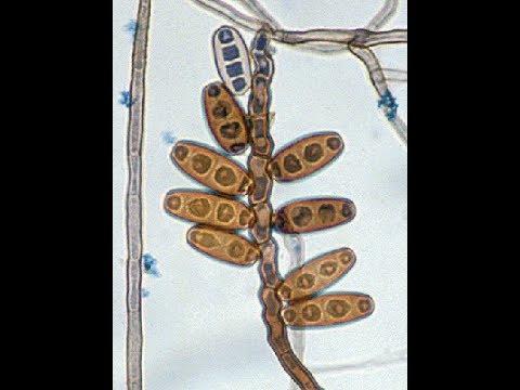 Gyógyszert vesz a paraziták számára a testben