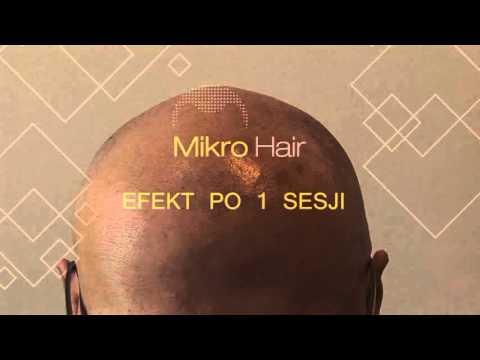 Włosy z brody u kobiet w leczeniu