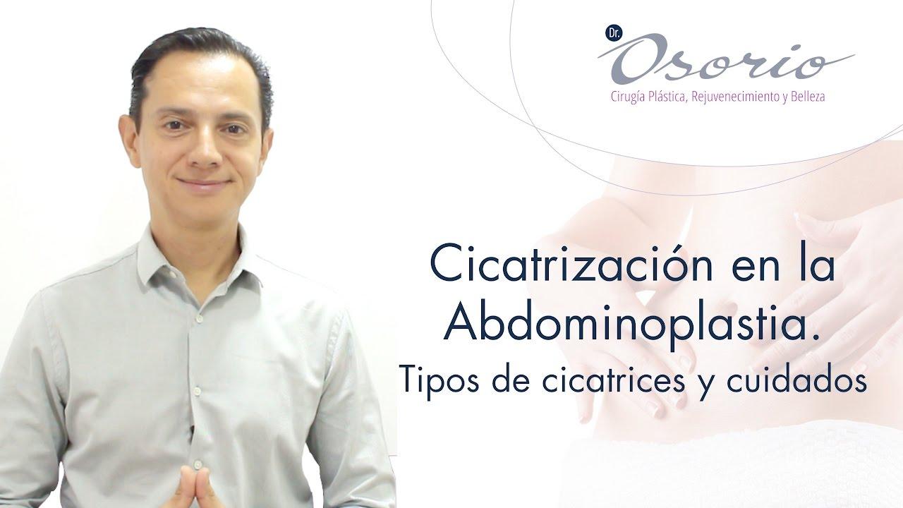 Abdominoplastia  (Capitulo 5).  La cicatrización y sus cuidados.