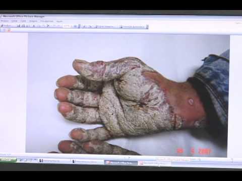 Tratamento por clima de eczema