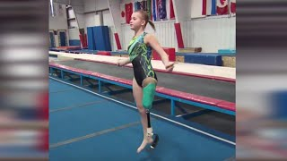 Download Youtube: One-Legged Gymnast Overcomes the Odds