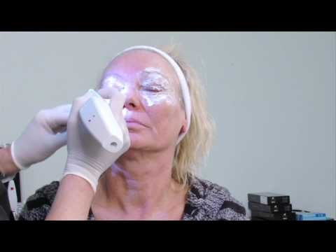 How to Tighten Eyelids - Plexr Plasma Therapy - Dr Ian Strawford at Skin Excellence Clinics