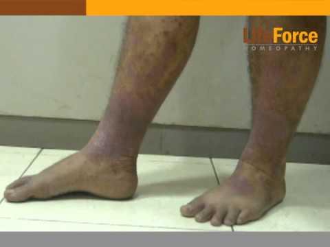Le traitement du psoriasis longuent naftalan