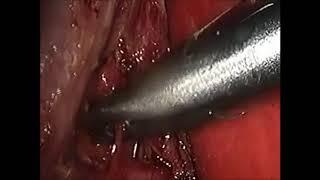 Laparoscopic Cholecystectomy for gallstones