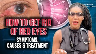 How To Get Rid Of Red Eyes: Top 5 Causes [2020]