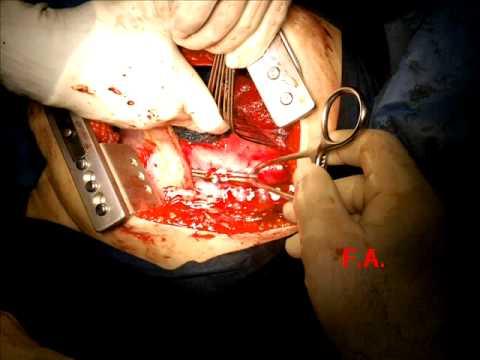 Controindicazioni chirurgia dellanca