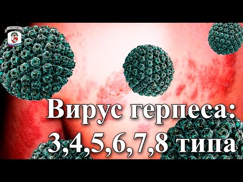 """На приеме у врача"" Выпуск 39 - Вирус герпеса: 3,4,5,6,7,8 типа"