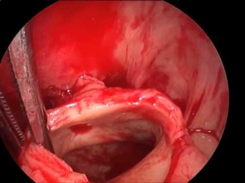 Masywny zator płucny