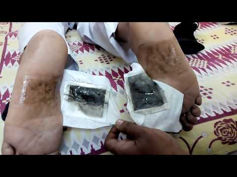 Detox Foot Patches at Best Price in India