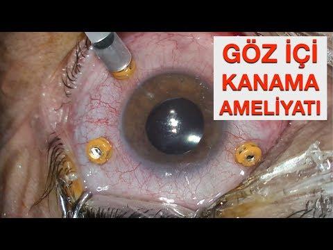 Göz İçi Kanama Tedavisi (VİTREKTOMİ ve LAZER)