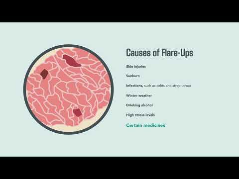Prognosztikus peritonealis rák