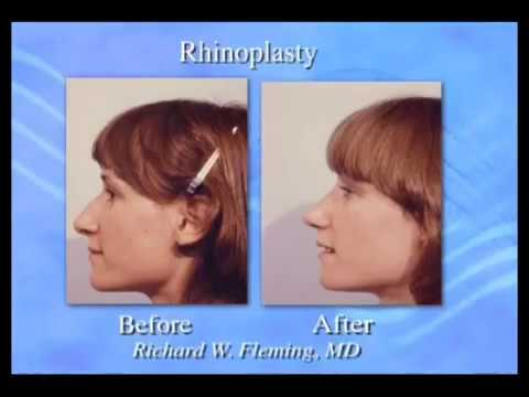 Allergies and Rhinoplasty