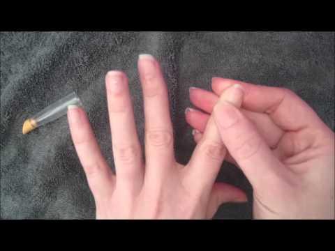 Quello che gli unguenti aiutano da dermatite atopic