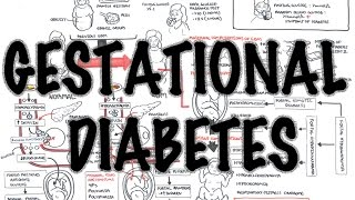 Ahoj New Video on Gestational Diabetes Mellitus GDM This is a detailed