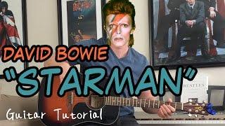 David Bowie   Starman   Guitar Lesson (INTRO, VERSE, CHORUS, OUTRO,  AND MORE!)