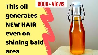 DIY DHT BLOCKER HAIR OIL, Best Hair Oil to Reverse Hair Loss, Baldness and Promote New Hair Growth