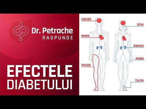 Crampe musculare și articulare