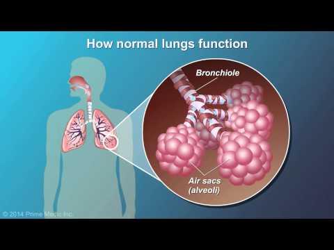 Shkalla e mm pulmonare hipertensionit