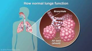 Chronic Obstructive Pulmonary Disease (COPD) is one of the four NCDs caused by smoking. But what is