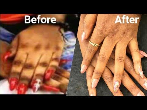 Skuteczna metoda plam pigmentowych