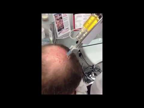 Mask ng protina facial acne