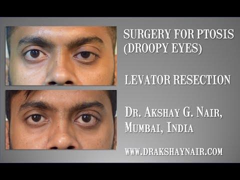 Lehetséges-e helyreállítani a glaukóma látását?
