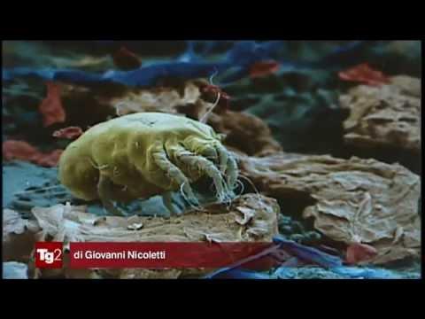 Quali prove fare per definizione di parassiti in un corpo umano