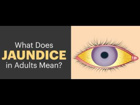 Video What is jaundice in adults? Remedies