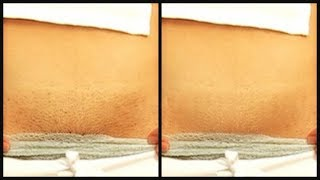 HOW TO GET RID OF PUBIC HAIR QUICK AND EASY |HOW TO MAKE HAIR REMOVAL CREAM |Khichi Beauty