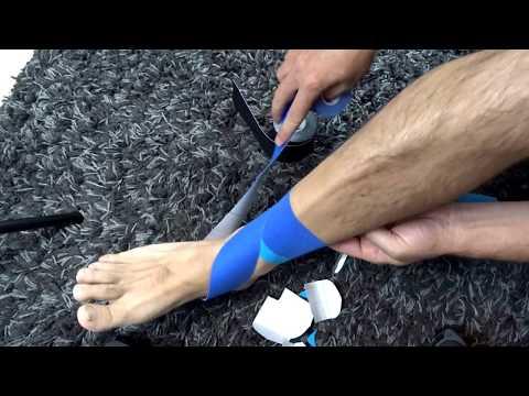 Hogyan lehet megkönnyíteni a térdízület duzzanatát gonartrózissal