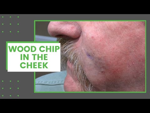 , title : 'Wood Chip in the Cheek   Dr. Derm