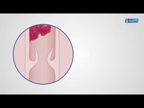 Die Ordnung der Erweisung der ärztlichen Betreuung nach dem Profil die vaskulöse Chirurgie