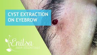 Cyst Extraction on Eyebrow
