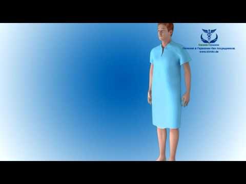 Новый метод операции на коленном суставе в Германии. Лечение в Мюнхене