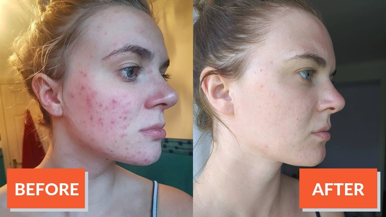 Hyperpigmentation From Acne Clearing Up Dark Spots Is Easy Clearly Basics