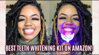 Best Home Teeth Whitening Kit on Amazon | iSmile California