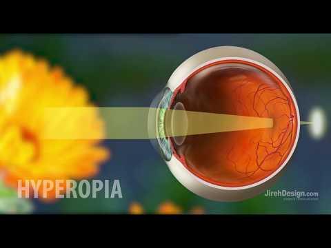 Százszázalékos látás és hyperopia