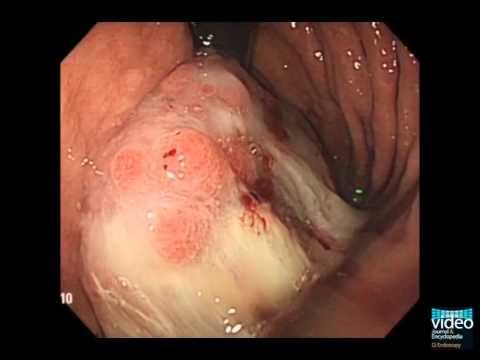 Cancer de prostata etapa 4