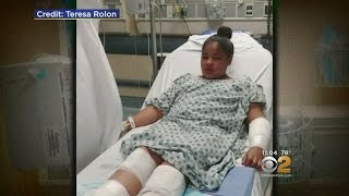 Girl Mauled By Dogs In Yonkers