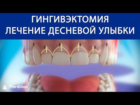 Гингивэктомия - Лечение десневой улыбки ©