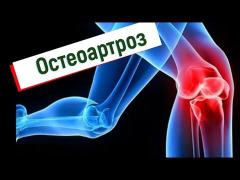 Cu tratament cu artroză cu plasmolifting