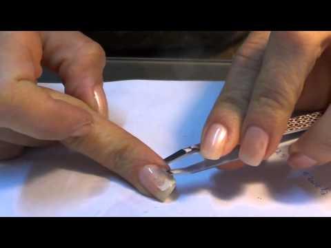 Siccome è possibile guarire un fungo su ununghia di gamba