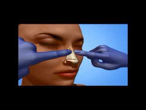 How A Nose Job Is Performed