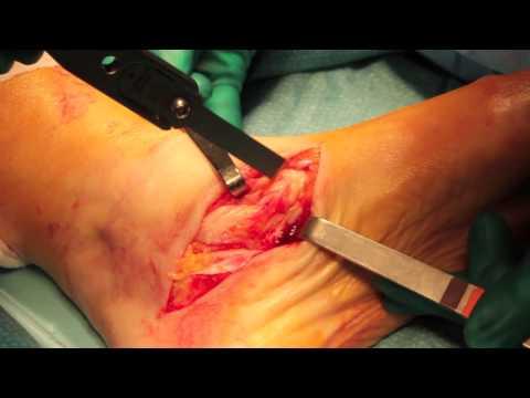 La varice variqueuse sur les pieds le traitement avec le médicament