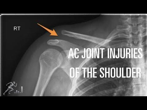 Schmerzen im unteren Rücken auf der linken Seite gibt auf