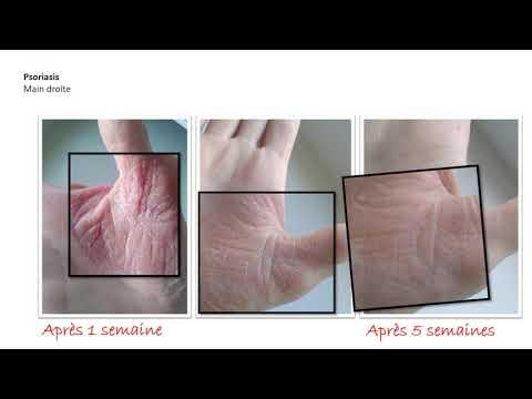 Les préparations pour le traitement du psoriasis kitaj