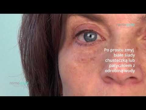 Przebarwienia na twarzy Kazaniu