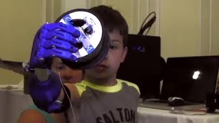 e-NABLE - volunteers offer prosthetic hands made for children by 3D printers